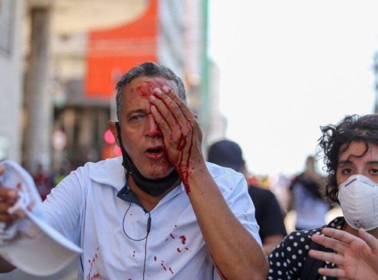 Tiro de bala de borracha da PM em protesto deixa homem cego no Recife